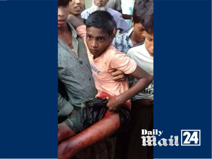 বান্দরবানের তুমব্রু সীমান্তে বিজিপির গুলিতে রোহিঙ্গা শিশু আহত